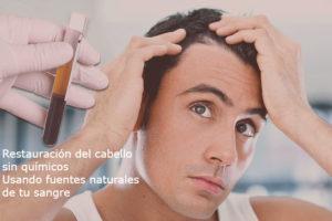 Alopecia - Prdida de pelo