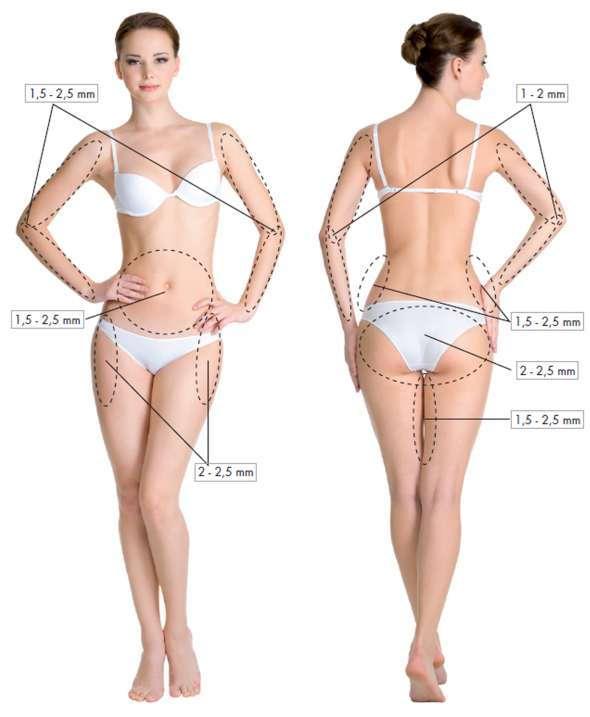 dermapunt-microagujas-cuerpo