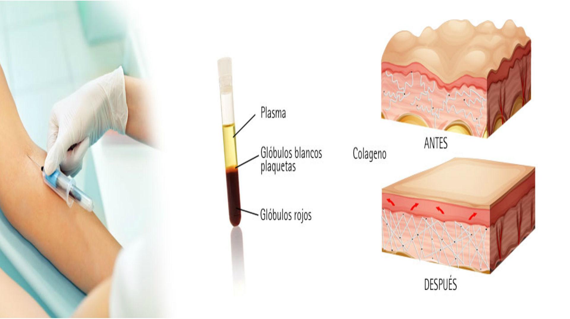 bioestimulacion-prp