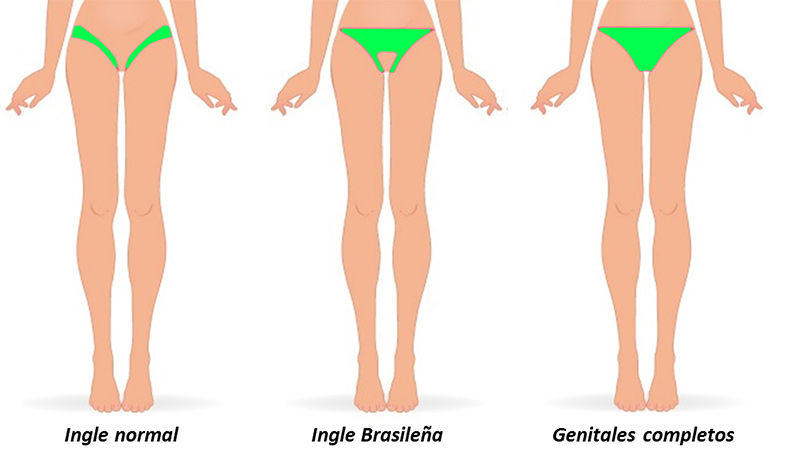 tipos-de-depilacion-intima
